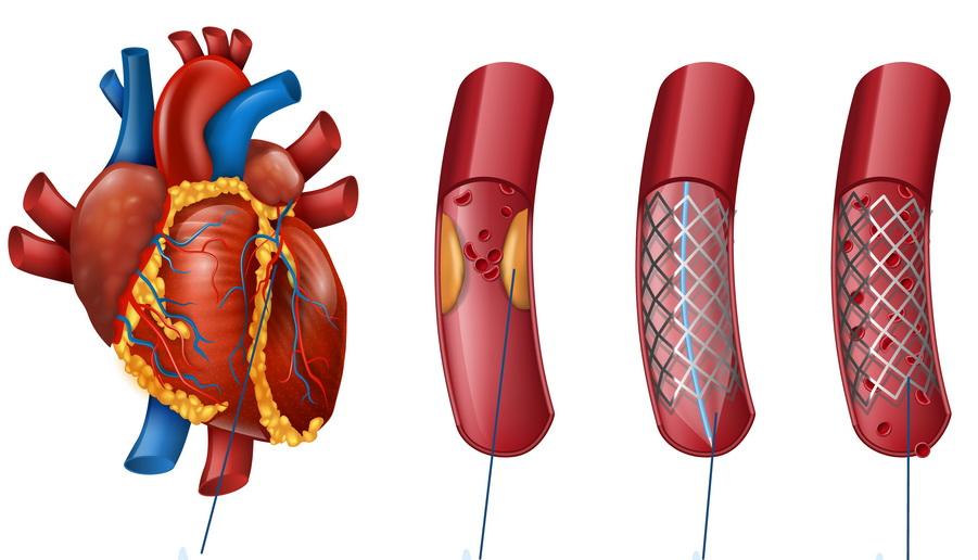 καρδιολόγος αθήνα, καρδιολογος αθηνα, καρδιολογος ακροπολη, καρδιολογικό ιατρείο, καρδιολόγος ακρόπολη, καρδιολόγος, καρδιολόγοι, καρδιολογικός έλεγχος, καρδιολόγος κέντρο